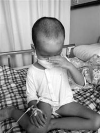 3岁女童患白血病做化疗爸爸为其剪发留做嫁妆