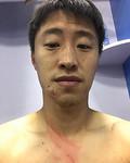 赛后,受伤球员郝强晒图展示伤痕