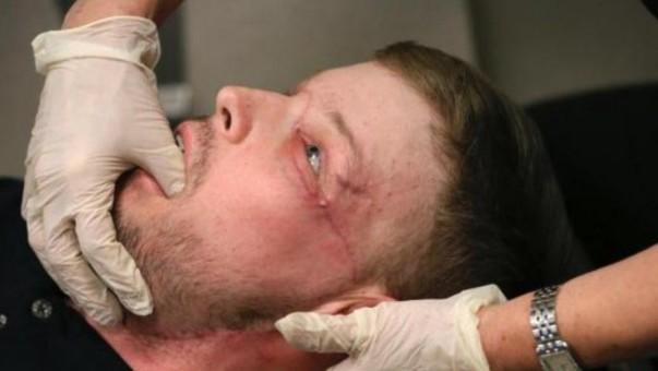 美男子吞枪自杀半张脸全毁 换脸获新生